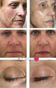 face lifting rf lifting befor after бръчки лифтинг лице процедури